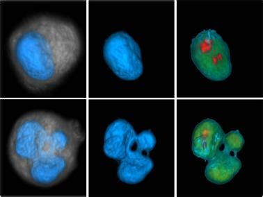 Research: New drug prevents cancer cells growth, survival